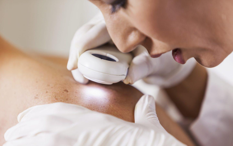 Consulta de Dermatologia
